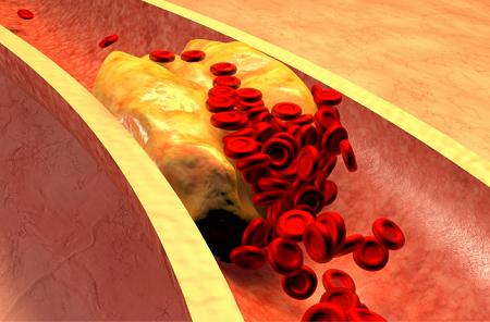 Miażdżyca naczyń krwionośnych jest jednym ze skutków ubocznych nieleczenia cukrzycy i insulinooporność