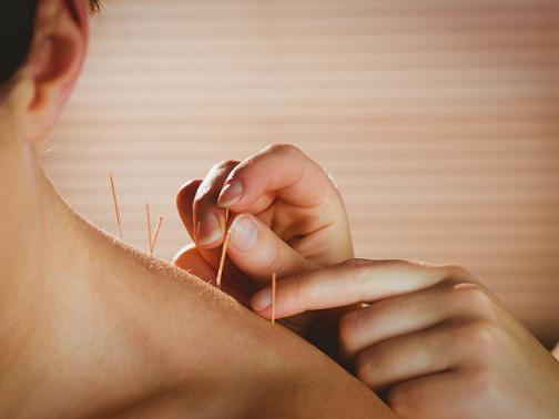 Akupunktura i dieta odchudzająca – można je łączyć, aby odreagować stres, który towarzyszy zmianie.